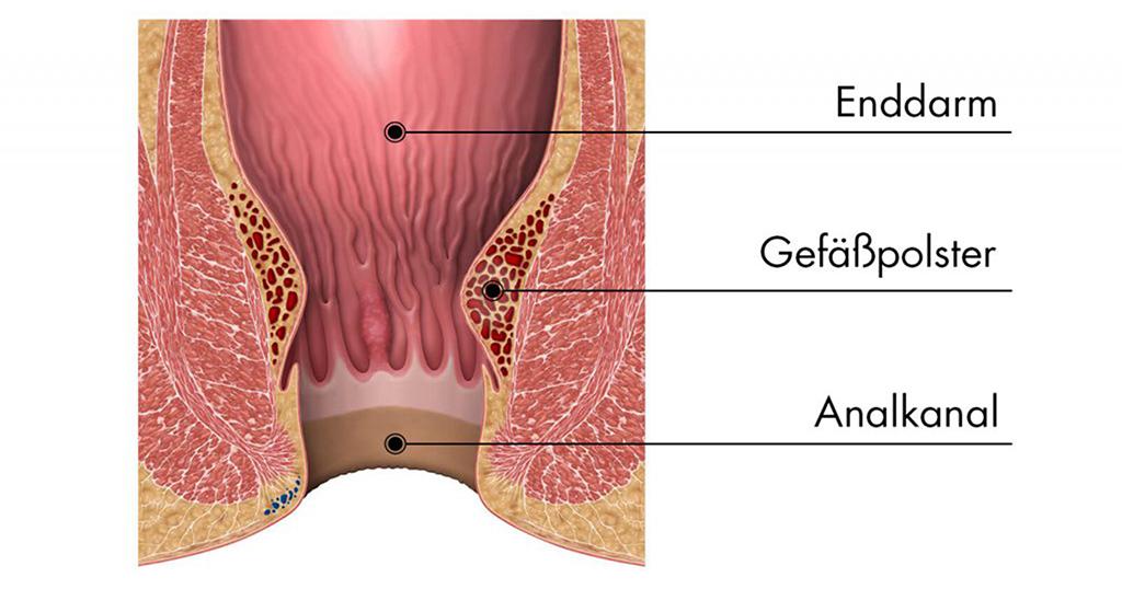 Graphische anatomische Darstellung von Hämorrhoiden