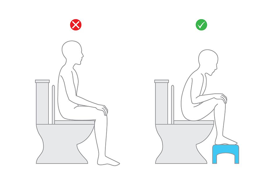 Grafik zur gesunden Körperhaltung mit Hocker während des Stuhlgangs.